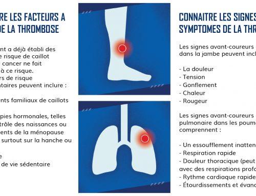 13 octobre : Journée mondiale de la trombose